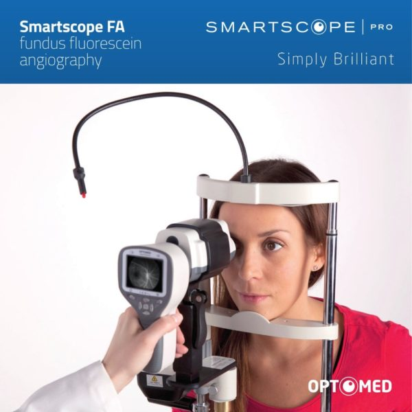 retinografo portatil smartscope
